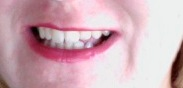 whiterteeth2.jpg